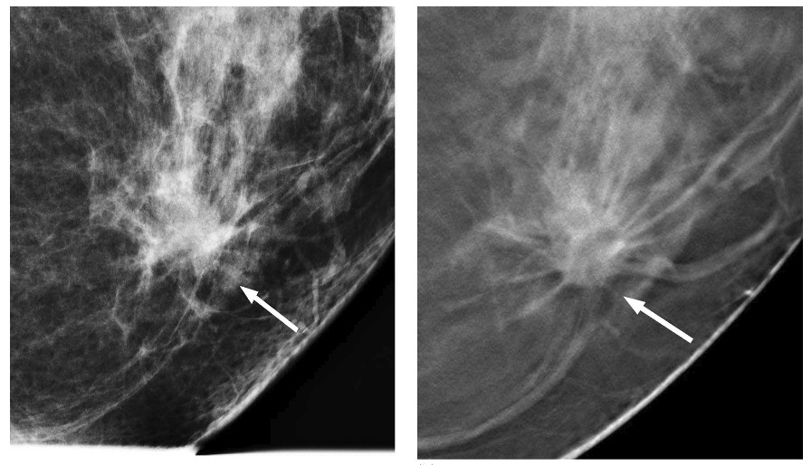 Pictures: Breast Cancer Digital Mammogram – Ehealthidea.com