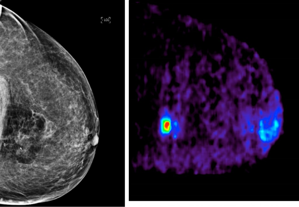 A patient with a small tumour seen in the mammography image on the left, compared with a colour-coded PEM image on the right. Images are courtesy of Dr Roberto Valdes of the Netherlands.