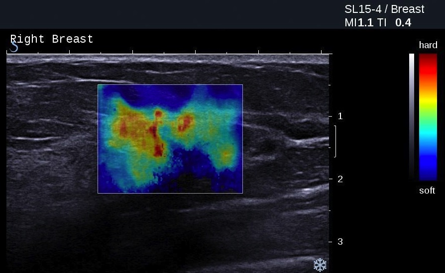 A breast ultrasound image with elastography information overlaid in colour, © SuperSonic Imagine