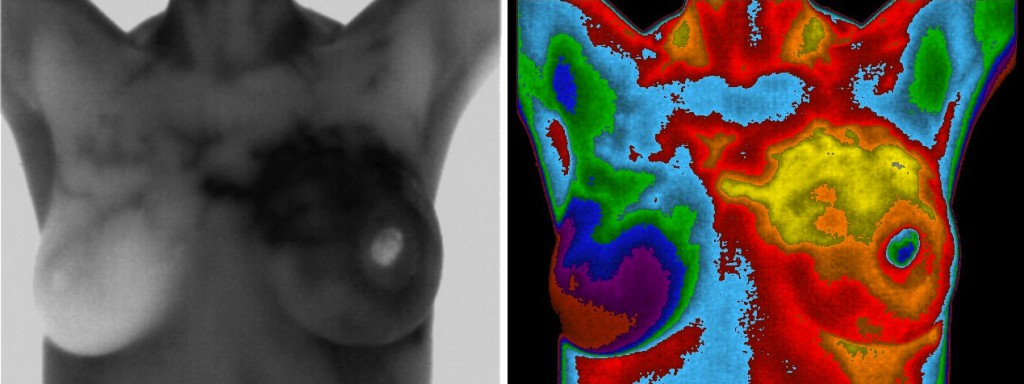 Caption: Infrared image (L) is colour-coded (R), showing inflammatory breast cancer in the upper left breast. Copyright, The Thermogram Center.