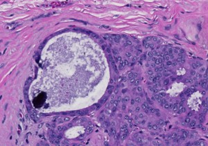 Photomicrograph of a microcalcification associated with breast cancer. Copyright MIT News.