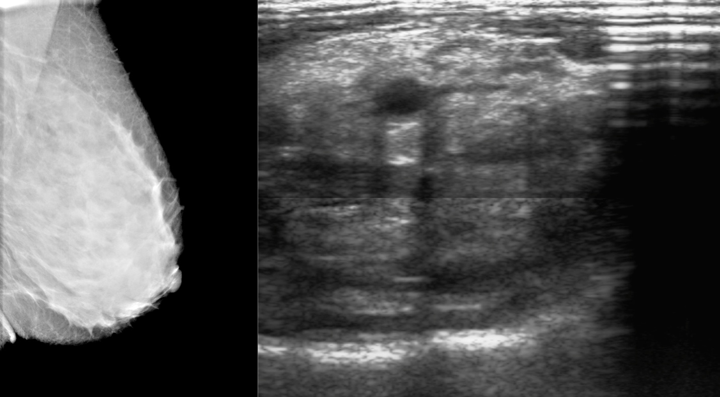... at CapeRay we are currently studying the first images from the clinical  trial of our Aceso system. Seen at left is a full-field digital mammogram  (FFDM) ...