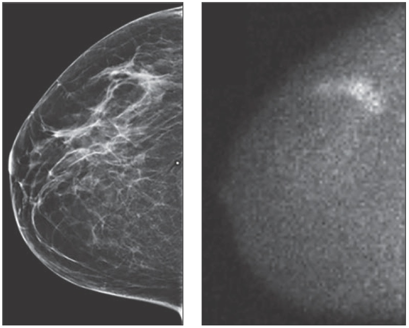 © American Journal of Radiology