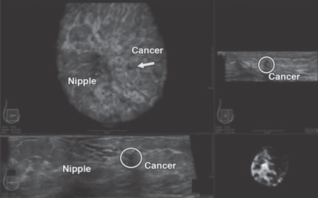 radiology essay Radiology essaysradiation as detection and treatment of breast cancer radiation plays a major role in the detection and treatment of breast cancer through mammograms and radiation therapy cancer, or tumors, are malignant growths which do not function like a normal cell instead, they grow uncont.