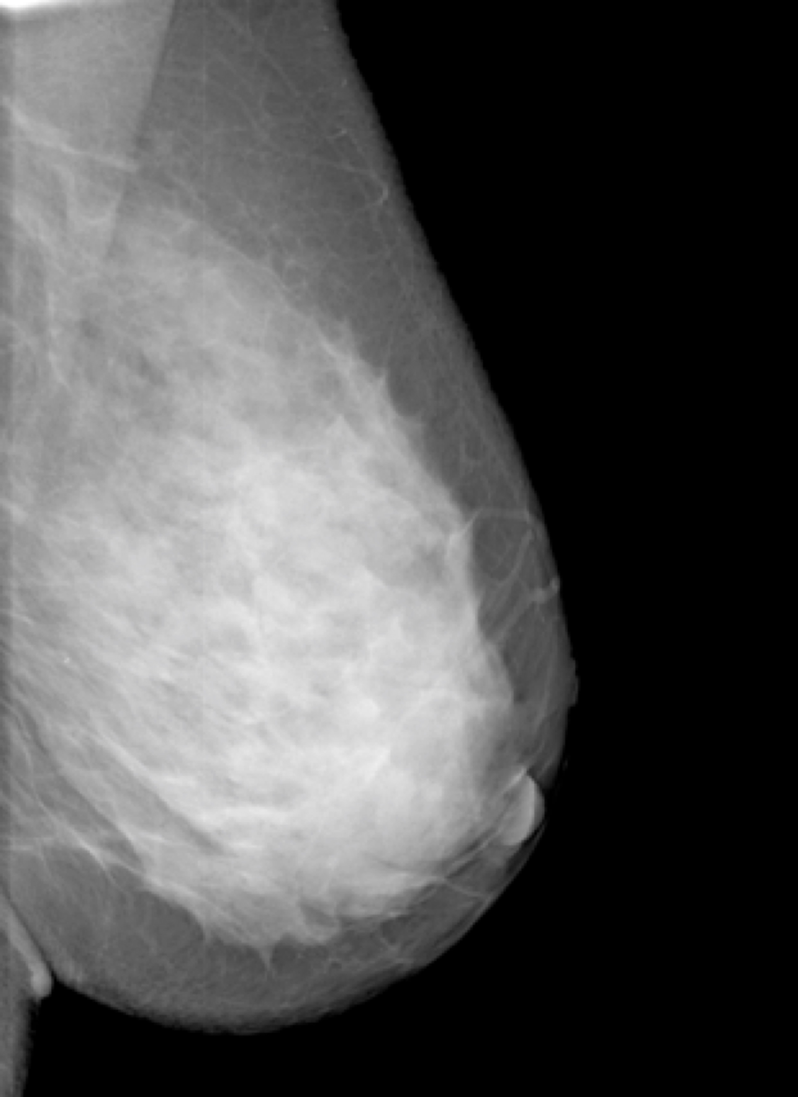 dense breasts